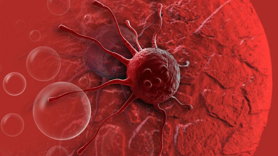 Beberapa Jenis Makanan Penyebab Tumbuhnya Sel Kanker